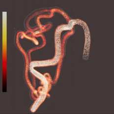 Interactive Visualization of Cerebral Blood Flow for Arteriovenous Malformation Embolisation