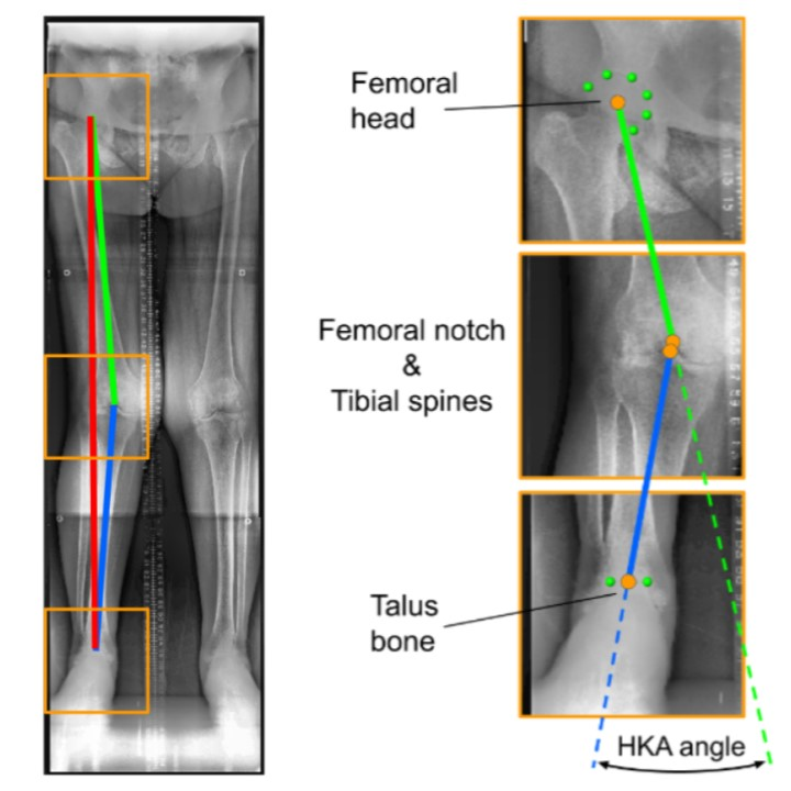 """Fully automated Assessment of Knee Alignment from Full-Leg X-Rays employing a """"YOLOv4 And Resnet Landmark regression Algorithm"""" (YARLA): Data from the Osteoarthritis Initiative}"""