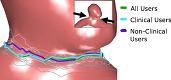 VICTORIA: VIrtual neck Curve and True Ostium Reconstruction of Intracranial Aneurysms