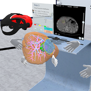 A collaborative virtual reality environment for liver surgery planning