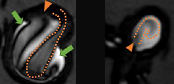 Focal enhancement in intracranial aneurysms - effects of local hemodynamics on VW-MRI signals