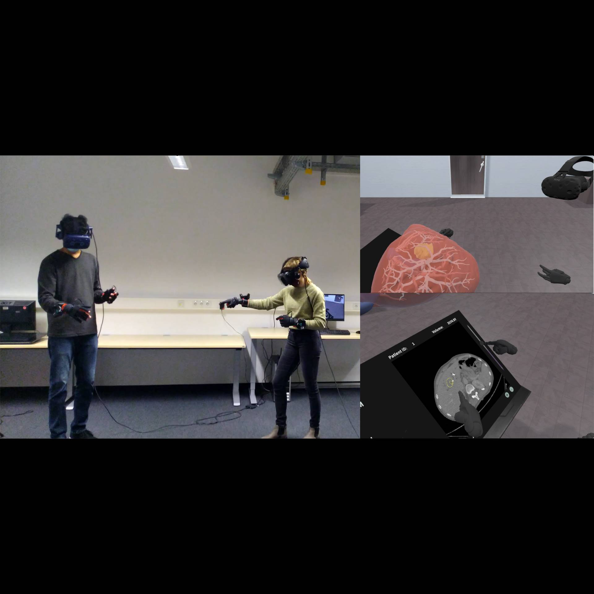 Collaborative VR for Liver Surgery Planning using Wearable Data Gloves: An Interactive Demonstration