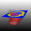 Novel Methods for Parameter Based Analysis of Myocardial Tissue in MR-Images