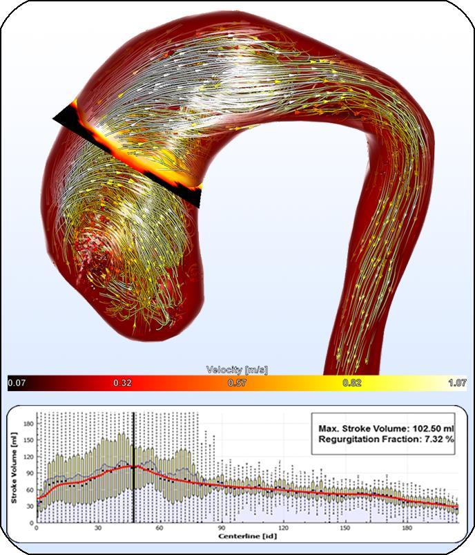Robust Cardiac Function Assessment in 4D PC-MRI Data