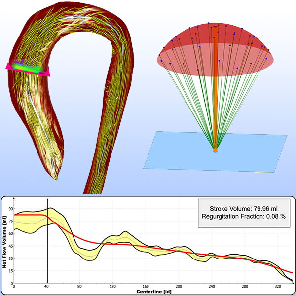 Robust Cardiac Function Assessment in 4D PC-MRI Data of the Aorta and Pulmonary Artery