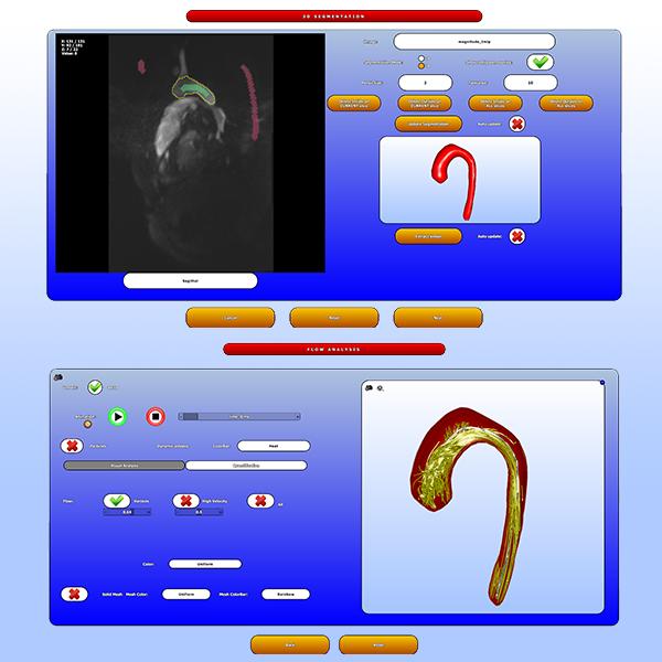 Guided Analysis of Cardiac 4D PC-MRI Blood Flow Data