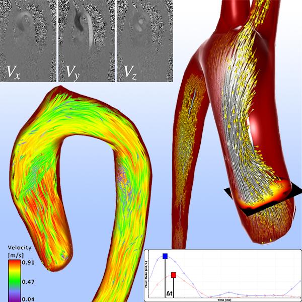 A Survey of Cardiac 4D PC-MRI Data Processing