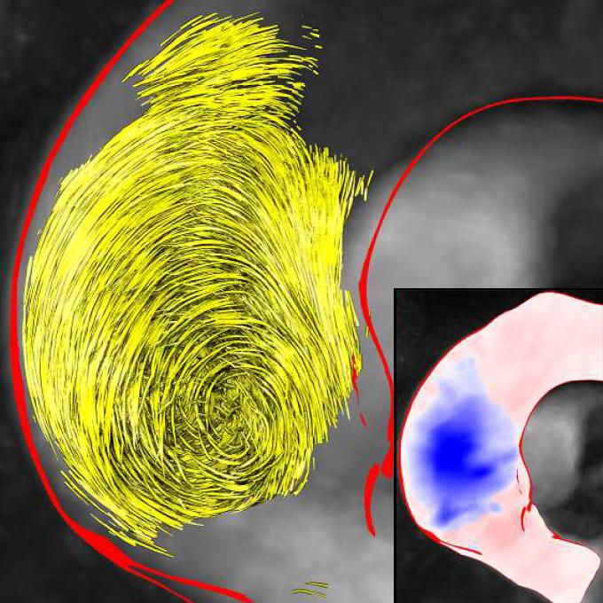 Pressure-based vortex extraction in cardiac 4D PC-MRI blood flow data