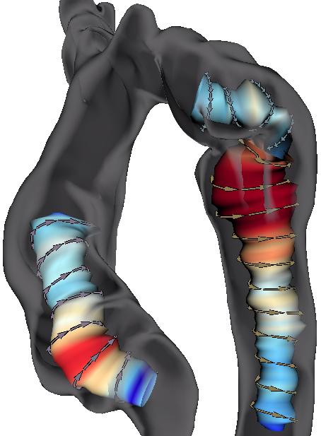 Semi-automatic Vortex Flow Classification in 4D PC-MRI Data of the Aorta