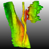 Generation of Smooth and Accurate Surface Models for Surgical Planning and Simulation