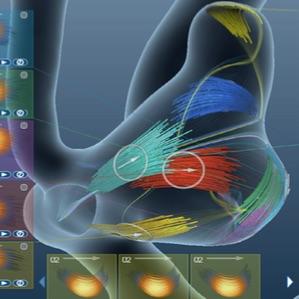 Computergestützte Exploration von Blutfluss in zerebralen Aneurysmen - geometrische Verarbeitung und interaktive Visualisierung