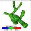 Generierung qualitativ hochwertiger Modelle für die Simulation von Blutfluss in zerebralen Aneurysmen
