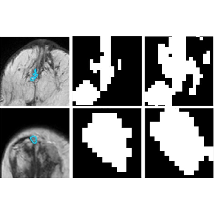 Classification of DCE-MRI Data for Breast Cancer Diagnosis Combining Contrast Agent Dynamics and Texture Features