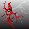 Visualization of Anatomic Tree Structures with Convolution Surfaces