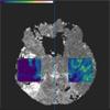 Multiparametervisualisierung zur Exploration dynamischer Bilddaten