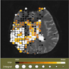 Intuitive Mapping of Perfusion Parameters to Glyph Shape