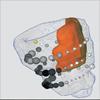 Integrierte Visualisierung kardialer MR-Daten zur Beurteilung von Funktion, Perfusion und Vitalität des Myokards