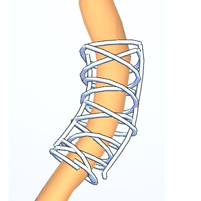 3D Sketching on Interactively Unfolded Vascular Structures for Treatment Planning